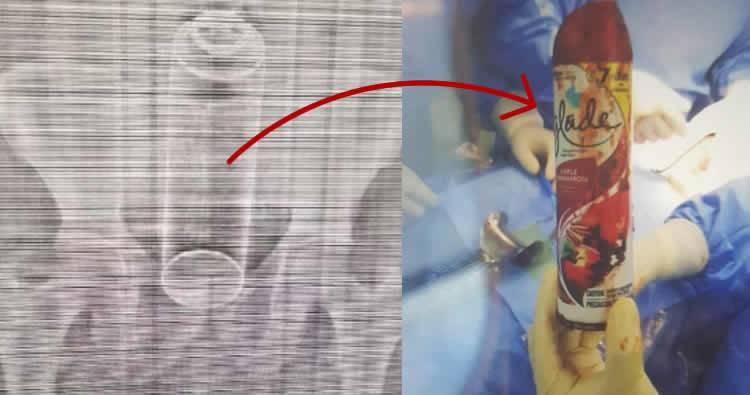 Investigan filtración de imágenes de la radiografía de hombre con 'Glade' en el ano