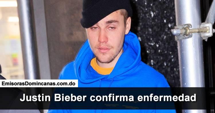 Justin Bieber padece de extraña enfermedad