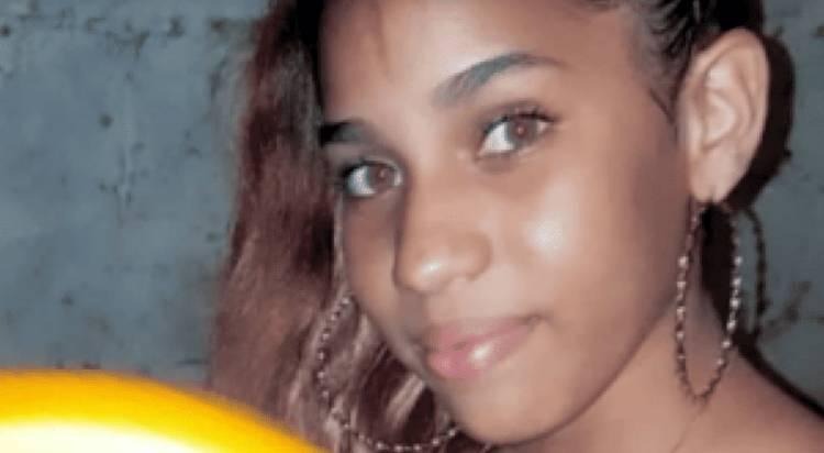 Yocairi Amarante (la joven que le echaron ácido del diablo) puede perder la vista